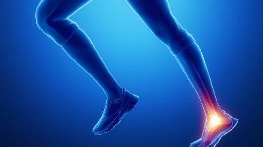 Conditions of the Achilles Tendon