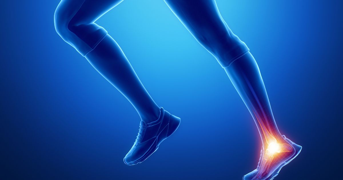 Conditions Of The Achilles Tendon Be Fit Physical Therapy